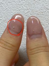 1ヶ月弱前にハードのジェルネイルをしました。爪をよく見ると左側だけ緑色になっているところがあって調べてみたところ、グリーンネイルではないかと思います。 (写真あり)本当にグリーンネイルならすぐにオフしたいのですが、サロンに断られたりしませんか?