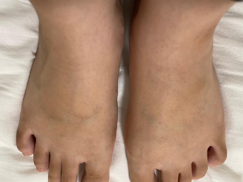 2回目のモデルナを打って3日後に、足の甲からくるぶし辺りに赤い小さな斑点ができました。痒みや痛...