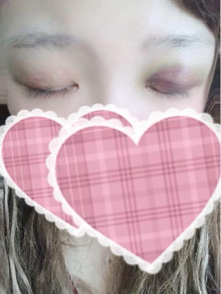 3日前に、二重整形(クイックコスメティークダブル)をしてきました。腫れはだいぶ引いたものの、右目の内出血がひどいです。早く治す方法などありますか?不安で…。