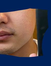 肌荒れに悩んでいます。 写真のような状態が長く続いています。 特に痒みがあったり出来物がよくあったりするわけではないです。アトピーでもないです。  毎日やっていること ・洗顔(ウーノ) ・化粧水(極潤) ・乳液(無印) ・日焼け止め  スキンケアに問題があるのでしょうか。ご意見お聞かせ願います。 皮膚科にてプロトピックを処方していただきましたが効果ありません。