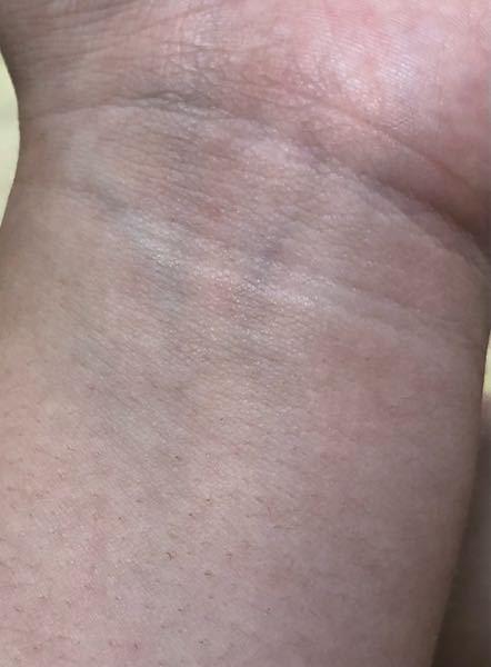 この血管の色は青ですか? パーソナルカラー調べたらイエベだったりブルベだったりします もしこれだけでイエベブルベの春秋夏冬分かったら教えて欲しいです