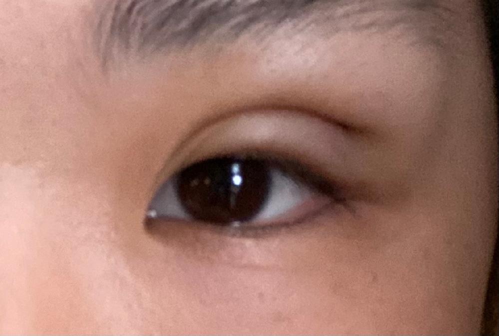 二重埋没 3日目です。 二重の線が目頭のギリギリ上に来るような 平行でお願いしました。 幅が広すぎて不安です。 もっと狭くなるのでしょうか。 経過3日目です。