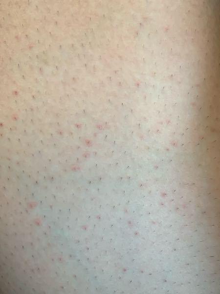 高校3年生の男子です、自分は腿の毛を剃ると翌日には写真のように赤い発疹が出てきます、カミソリはジレットヴィーナススワールの体毛処理用の物を使い剃った後はすぐにジェルと乳液とワセリンで保湿しています。ど うすればこの発疹を出さずに剃れますか?