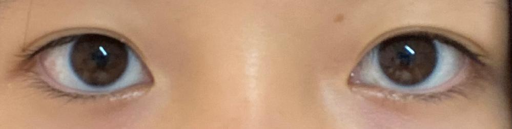 目の横幅が3.5cmで目と目の距離が4cmあります。離れ目に見えますか…?治し方とかあるのでしょうか。ダイエットしたら少しは縮みますかね? あと目が腫れぼったいと言われたのですが、腫れぼったく見えますか?