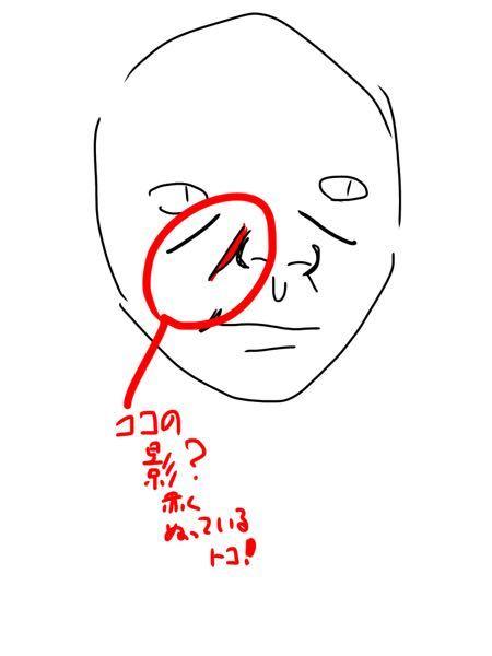 18歳女子です 鼻の横にほうれい線のような影がありますが 多分ほうれい線じゃないです。 なんという名称でしょうか?笑うと濃くなります。 また、消す方法を教えてください(マッサージなど) よろしくお願い申し上げます。 写真を撮るとここが影になってしまうのでコンプレックスです。
