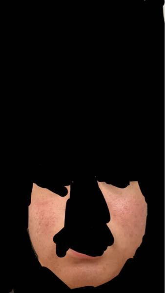 汚い画像ですいません。 このような、顔の赤み?ニキビ?はどうすれば消えるのでしょうか。