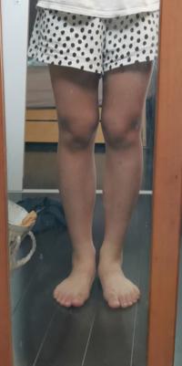 o脚とかxo脚とかあるじゃないですか?これは何脚ですか