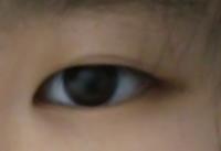 私の目なんですけど、蒙古襞酷いと思いますか?