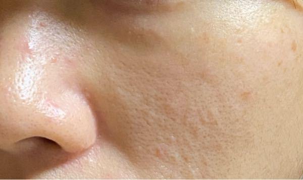 美容マニアの方、美容皮膚科の先生、看護師さん、教えてください。 30を過ぎてから、肌の衰えが加速しています。 気になっているのは、鼻の毛穴の角栓がすぐにたまり黒くなってしまう、頬の毛穴が目立つ、...