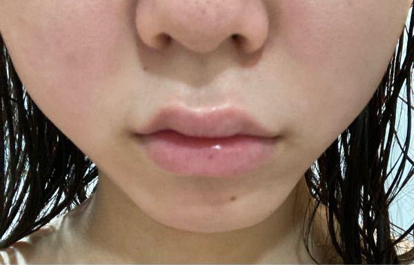 上唇にヒアルロン酸入れたら人中短く見えますかね? 鼻も整形しようと思っています。