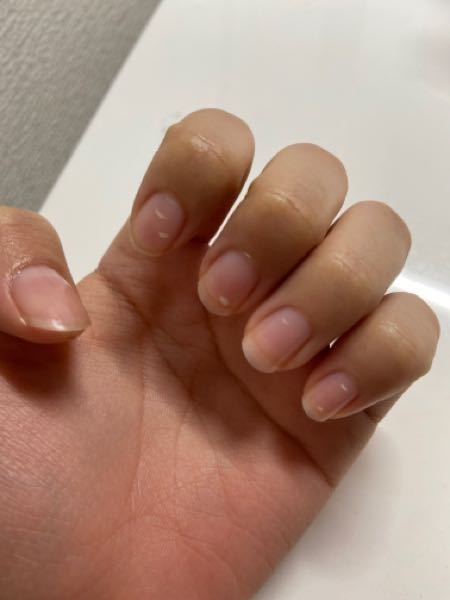 爪に白いのがよくできるのですがこれはなんなのでしょうか?出来なくなる方法も知りたいです。