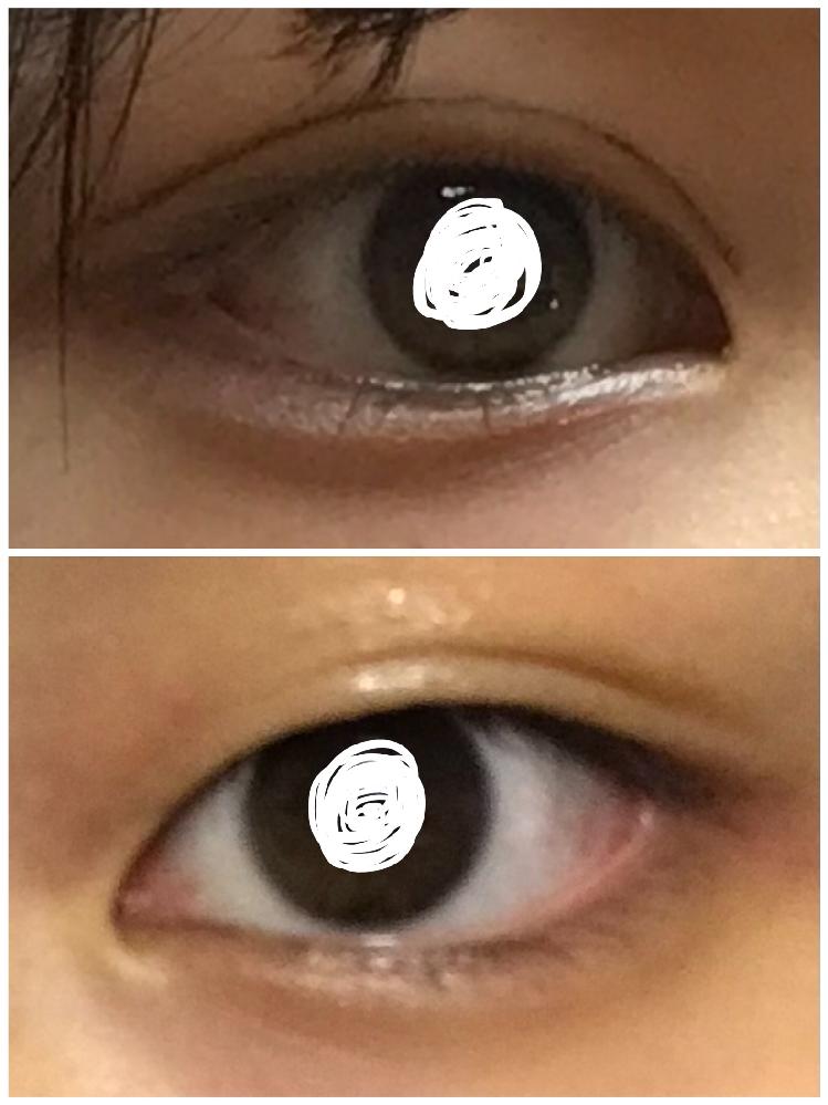 アイテープまたは皮膜式アイプチのやり方について のりタイプのアイプチと二重アイライナーを使ってばればれなのは承知の上で癖付け重視でやっているのですが毎日のりタイプで二重にするのは時間がかかるのと瞼がのびるのが不安なのでアイテープや皮膜式のアイプチに変えたいと思っています。 ですが、瞼が厚いのか、目頭に近いところがうまく折り込まれず腫れぼったい目になってしまいます。どうすればうまくできますか。 写真上がのりアイプチ+二重アイライナー、写真下が何もしていない状態です。