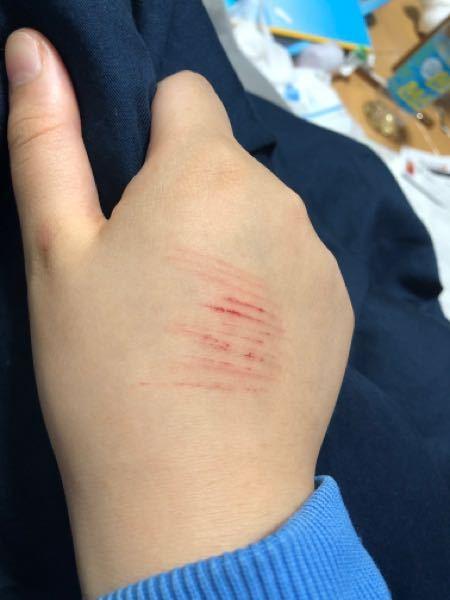 こういう傷があったら先生達は見ますか? バレたらどうなりますか?