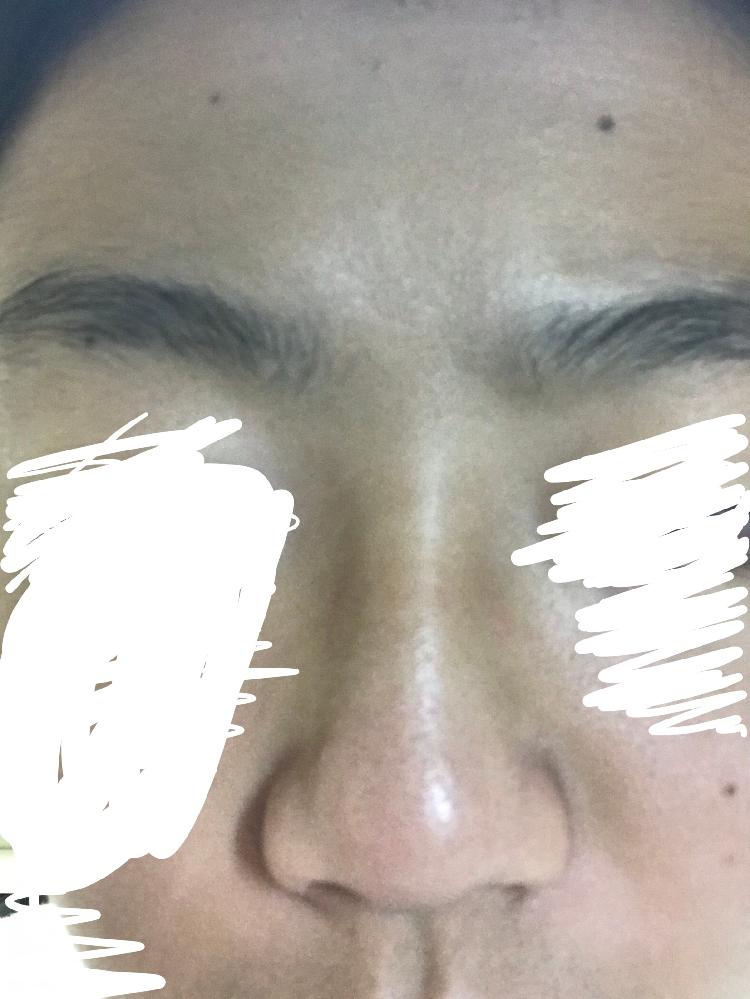 鼻筋がないと思っているのですが、これが普通ですか?