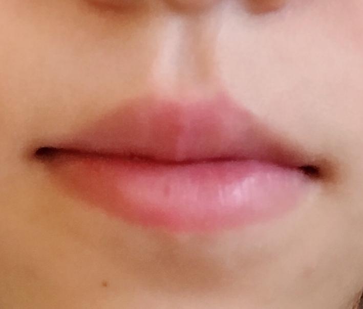 分厚い唇に悩んでいます 最近まではあまり気にならなかったのですが、世の中の綺麗な人とかって唇が薄い人多いんですよね、、、 家族は気にならないよ?とか言ってくれますけど上唇が分厚いのがコンプレック...