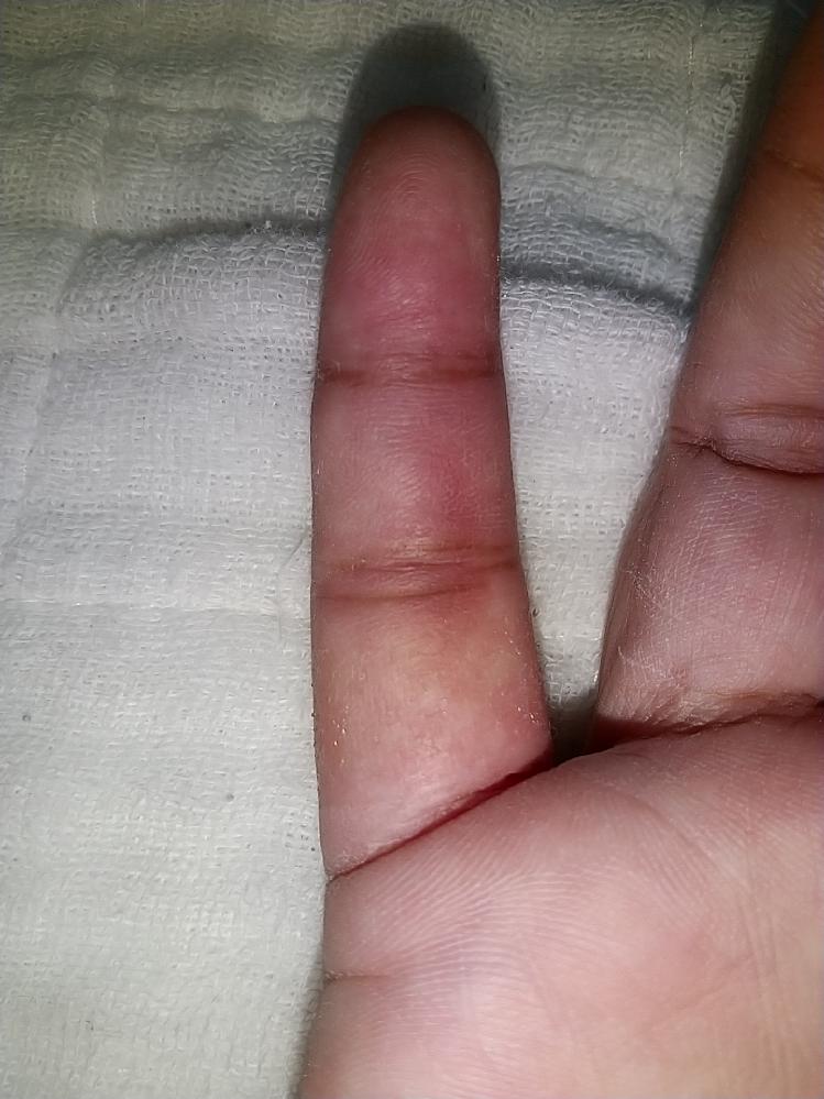 8月23日にバレーボールで、手の小指の剥離骨折をしました。整形外科で、スポンジみたいなのに、アルミシーネがついたもので、固定してくれました。 2週間経っても、まだ内出血していて、痛くて、昔からお...