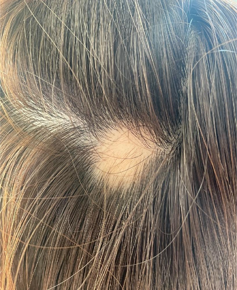 先日美容院へ行った際に 円形脱毛症ができていました。 色素の薄い毛がありますが これは治ってきているのでしょうか? これから抜けるのでしょうか、、。
