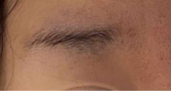 ⚠️汚い肌ですみません 昨日眉を剃ったら失敗してしまい、今こんな状態です。 前髪で何とか隠せますが髪を切ってもらう時など顕になるので恥ずかしい、、 どのくらいでちゃんとのびて、いい感じに剃り直せるようになりますか? また、どう剃れば上手くできるのが教えて頂きたいです!