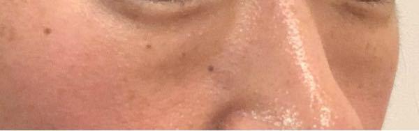 目の下のたるみ。 自力で改善された方居ますか? 40歳女性です。 たるみの程度は下の写真く...