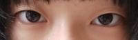 眼瞼下垂っぽいですよね。。?