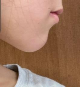 上の写真のように私は顎が長くしゃくれていて 顎の長さを抑えたいので舌の位置を変えたりしてみたのですが他にアドバイスありますか?