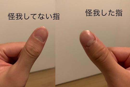 バレーボールをしていてブロックした際に爪の周りから血が出てきて、曲げても痛くはないのですが、押したり、字を書くとすごく痛いのですがどのような怪我が考えられますか?