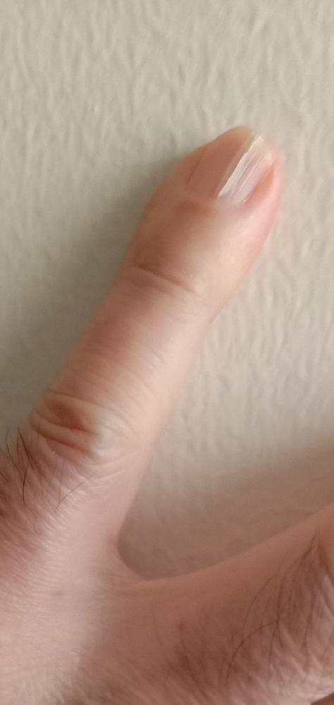 左手の小指が画像が画像のように縦に割れています。筋ではありません。完全に割れています。 指をドアで挟んだとか、物理的な衝撃は加えていません。 これは悪いことが起こる兆候でしょうか。