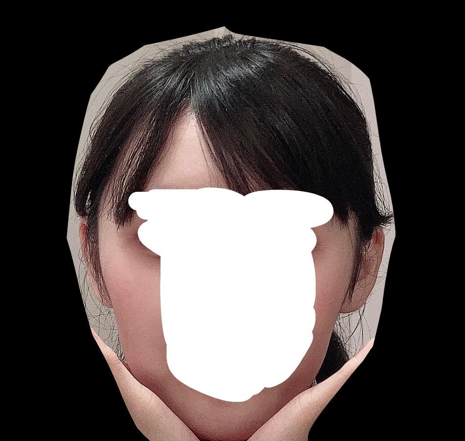 頬骨の骨切りについてです。 画像のように、頬骨が丸く横に出っ張っていることと、顔の余白がめちゃくちゃに広いのがコンプレックスで、頬骨の骨切りを考えてます。 ですが、頬骨を削ったところで頭も横に広いので、意味が無い気がしています…。 骨切りをした場合、まっすぐな輪郭になりますか?