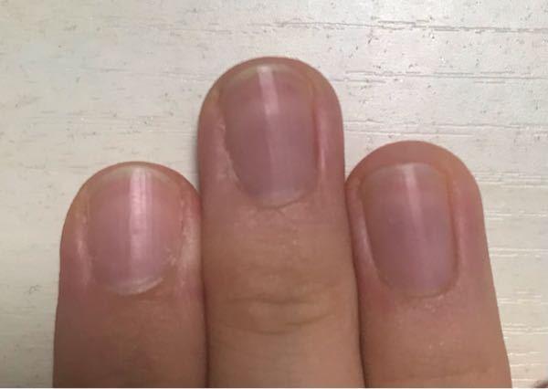 私の爪は指によってつめの形がバラバラで、特に人差し指の爪が丸いのと、中指の爪が傾いているのが悩みです。ネイルサロンで自爪ケアをしてもらい、できるだけ形を整えて貰いたいのですが、何回ほど通えばマシになり ますか?