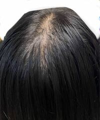 高校生の女です。 頭(髪)の脂が酷いです。  お見苦しい写真すみません。  お風呂上がりは大丈夫なのですが、 お昼~夕方になるといつもこんな感じになります。  絶壁頭+後頭部の髪の毛が少なめというのも あると思います。 父からの遺伝もあるかもしれないです。  頭皮の脂を減らす方法、髪の毛を増やす方法等を 教えて頂きたいです<(_ _)>  ちなみにシャンプーは Luxのピンクのパッケージの物...