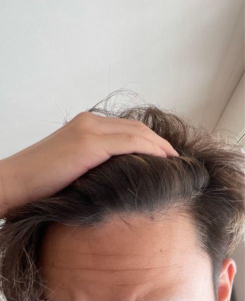 これって禿げてますか?18歳です