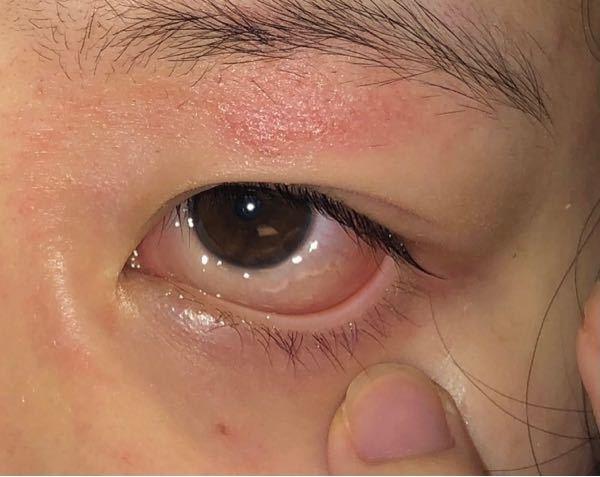 1ヶ月前くらいから目の周りがとても痒いです。 今まで全体が赤くなることはなかったのですが 今では全面に広がってしまって、鏡を見るたびに悲しくなります。 初めは眉毛が痒くて、掻きむしるとボロボロになるのが分かっていたので爪でチクチクしながら我慢してたのですが、そこから瞼が痒くなり次は目頭付近が痒くなりました。お見苦しい写真で申し訳ないのですが 瞼が特に酷くて……瞼が伸びてしまいました。 原因として考えられるのがアイプチだと思ってます。 痒みのせいでヒリヒリするし、だけどアイプチしないと出掛けれないと言う悪循環を繰り返しこの様になってしまいました。今はアイプチをやめて寝る前に保湿してから絆創膏で二重の癖付けをしています。 それでも一重になってしまう日があるので、その時は 罪悪感を抱えながら少しのアイプチをつけて、なるべく負担にならないよう工夫しています。 もう一つ問題なのが朝、目が開けられないほど目やにが凄いです。夜寝る前に目薬をさして寝てるのですが寝ている間に目を擦ってしまってるみたいで、涙袋の境目が見えないほどパンパンになってる日がよくあります。アレルギーなのか、それとも痒みが原因なのか分からないのですが、朝から憂鬱になります。 また、目がゼリー状になっていて黒目が白目に食い込んでいました。白目が黄色くなっていて目だけがどんよりしています。 これ以上瞼にも目にも負担をかけたくないです。何か改善方法はありますか?