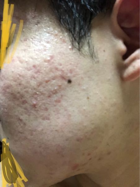 この肌荒れってどうやったら治りますか… 高校2年生男です