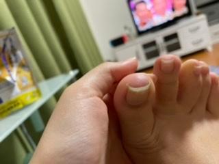 小学生の頃から足の爪全部が巻き爪です。 最近、くつのサイズがあっていないせいか 親指の巻き爪が痛いです。 歩くと痛みもあり押すと左側が特に痛みがあります。 また爪の皮膚の間?を押すととてもいたい...