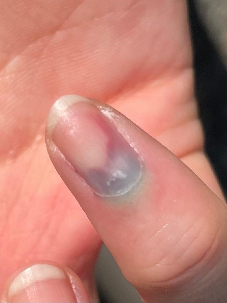 詳しい方、教えていただきたいです。 小指を強い力で挟んでしまったのですが 病院に行った方が宜しいでしょうか? 少し腫れてる程度で関節は曲がります