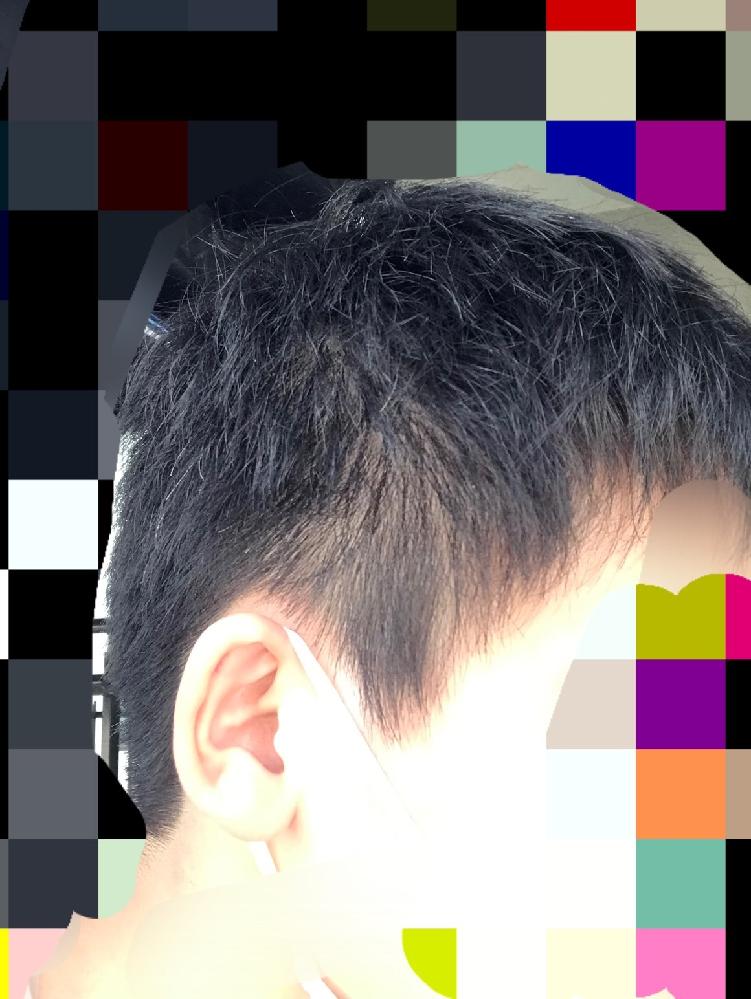 サイドの髪が禿げてきています。これはストレスが原因なのでしょうか。 また治癒する方法があれば教えて欲しいです。