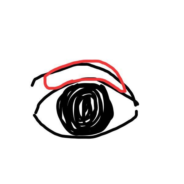二重の線はあるのですが、この赤の印を入れたところの脂肪(?)が邪魔をして二重の線が浮いたり、目が腫れて見えたりしちゃっています。 どうしたらこの現象治りますか?(>_<;) マッサー...