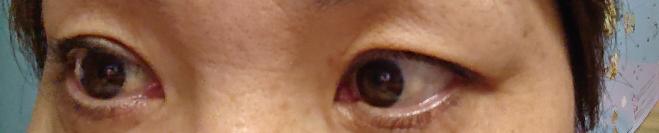 このまぶたは眼瞼下垂でしょうか? 元々二重なのですが 片目の方が特にまぶたがかぶさっています。 整形を受ける場合 埋没法での整形では やはり重くて無理でしょうか?