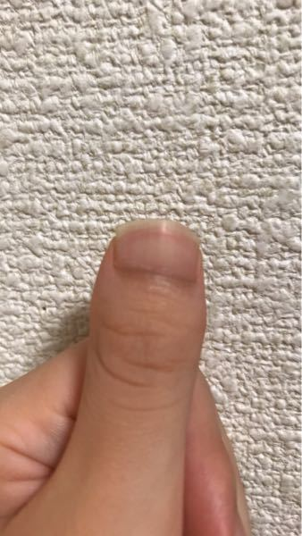これってマムシ指ですか?