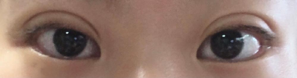 埋没整形について質問です。 5日前に手術をして現在DT4日目(画像の目)です。初めての整形という事もありDT1日目〜2日目は目が開けられないくらい腫れました。現在は少しマシになったかと思うのです...