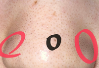 写真汚くてすいません。 鼻に大きい黒い毛穴?穴?があります。黒で囲まれた丸です。これはなんですか?治るものなのですか?もうきえないのですか?化粧しても目立ってしまって困っています。原因がわかる人がいたら教えてください。  それと赤のまるで囲まれている黒ずみが2年くらい前からとれない(気づいた日から色々なもの試しました。)です。 治る方法があれば教えて頂きたいです。