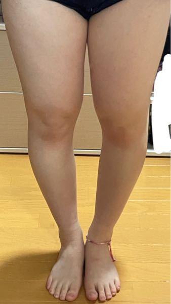 きたねぇ足が移ります。ご了承ください。 高2女子 身長154cm 体重57kgのデブです。 私は下半身に脂肪がつきやすく、太ももは56cmあります。ほんっとに太いです。 1週間なるねぇの足パカをしたけど変化なし。 水を1日2リットル飲むやつもやったけど普段あまり水を飲まない私がいきなり飲んだら浮腫がえげつない事になって飲むのやめました。 変わったことと言えば私のモチベが下がったぐらいです笑 中学の頃は運動部に入ってました。 今よりは細かったけど周りと比べれば太い方です笑 私は痩せることできないのかなって思うと死にたくなります(^^; 今は中学の時よりは全然動かなくなったのでこれが原因というのは分かってるんですが、どのように動けばいいかも分からないし痩せる歩き方とかもよくわかんなくてやめました。ごめんなさい笑 体重は-10kg目指してます。 上記の文を読んでこいつ痩せる気あるのかよって思ったと思うのですがあります。 なにか質問等ありましたら答えます。 沢山の回答お待ちしてます。