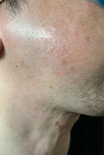 今35歳の男なんですが接客業で働いているんですが髭が濃くて悩んでいます。マスクしているので鼻下や顎は隠れんるですが頰のヒゲが目立つため脱毛を考えています、藤沢に湘南美容外科があるのでカウンセリン...