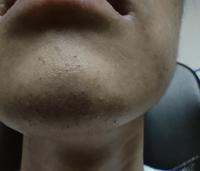 大学生男子です。 今まで髭の生える量が微妙で今までピンセットで抜いてきてましたが、清潔感がいるとかが周りで話題になり髭剃りとか脱毛を考えていたんですが、この画像の場合どうするべきだと思いますか? 全体に生えてるわけじゃないからこのまま抜き続けるか、メンズクリアとかで脱毛するか、など手段と処理に困っています。