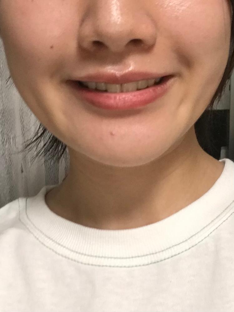 自分の顎の長さや形についてです。 笑うとわかりやすいのですが、顎が長いし斜めってるし形が茄子みたいで気になります。 これは噛み癖などが原因で、それを改善すれば治ったりしますか? それとも顎変形症などに当てはまるのでしょうか。 とにかく改善方法が知りたいです。 整形であればこれが適用など、できるだけ詳しくしりたいです。 ちなみに関係あるか分かりませんが…歯科矯正済で、顎にはそんなに変化がないように思いますが、歯科矯正後に前歯がでたような気がしてほうれい線ができました(;;)