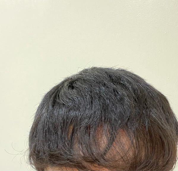 男子高校生です 自分はくせ毛なのですが、そのせいで前髪が透けて見えます。ハゲっぽく見えてなんか嫌です。というか禿げてるのかも知れません。僕は禿げてますか?透けて見えない対処法とかあったら教えてください