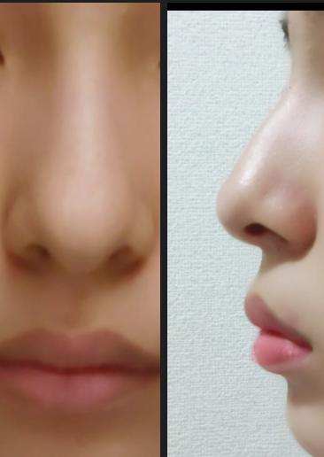 私は自分の鼻の形が好きではありません。 これは鷲鼻ですか? 少しボコッ(?)としてる気がします。 マッサージなどで鼻は変えられますか? 出来るのであれば、どのようなマッサージが有効でしょうか。学生なので整形は出来ないのです…よろしくお願いします。