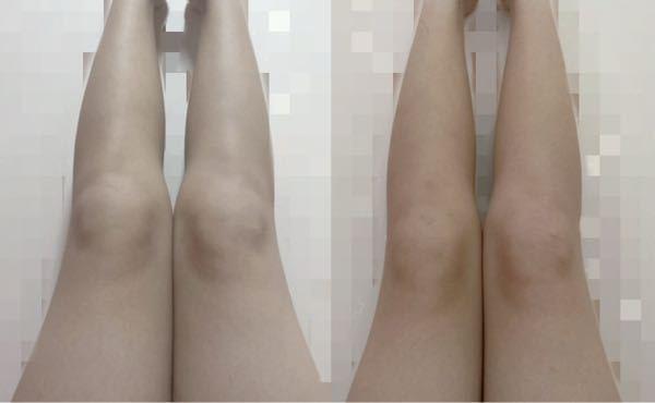 右が今で左が1ヶ月前くらいなんですけど足細くなってますか?