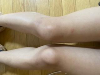 中学生女子です。 小学校の頃に階段で転んだりアザができたりして、足がめちゃ汚いです…。 友達と遊ぶ時も恥ずかしくて、なるべく早めに治したいです。 どうしたら綺麗な足になりますか?