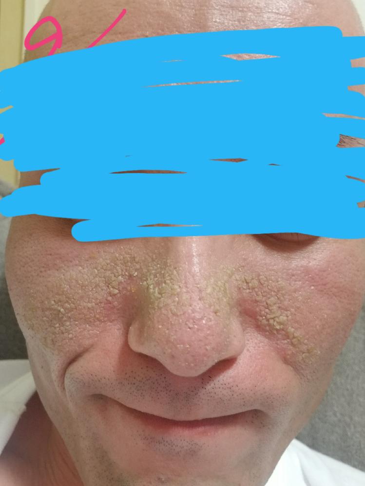 この肌荒れの症状は、なんですか?